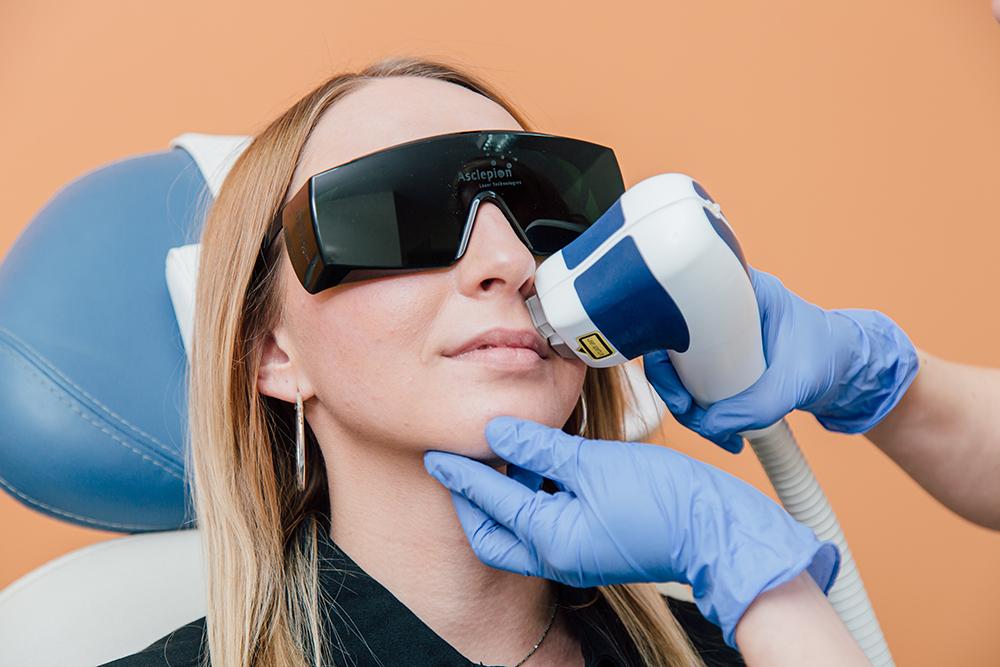 Kosmetische Lasertherapie Braunschweig - Haarentfernung Oberlippe